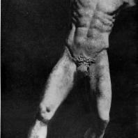 Мирон. Марсий. Середина 5 в. до н. э. Мраморная римская копия с утраченного бронзового оригинала. Рим. Латеранский музей